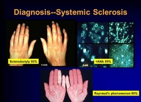What Are Complications Of Scleroderma?