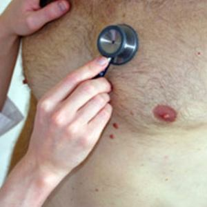 male-breast-cancer