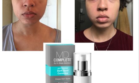 best treatment for dark spots on face Archives — Good Enough